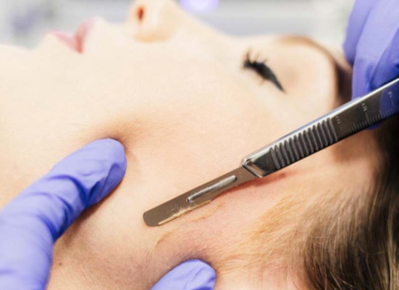 A woman receiving dermal fillers from Natural Face Aesthetics in Malmesbury, Wiltshire.