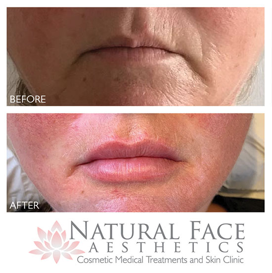 Before and after photos of a patient having had dermal fillers in Malmesbury